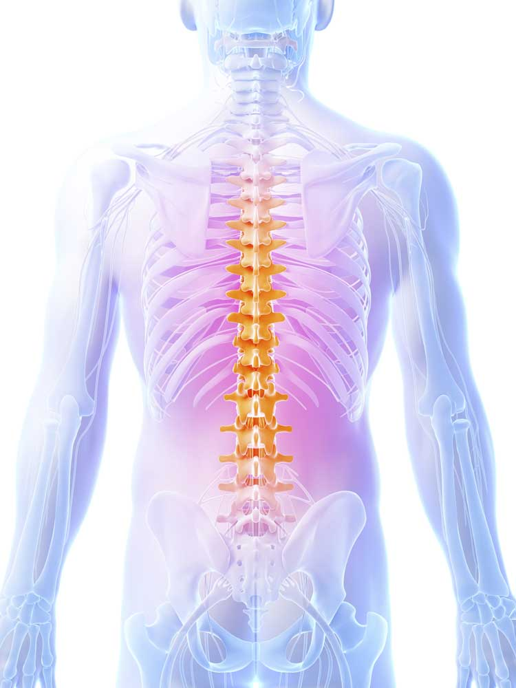 Non Specific Back Pain